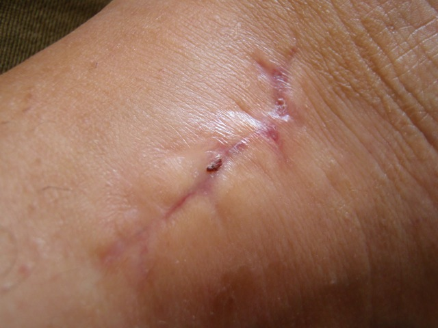 7 week scar check - Fibula