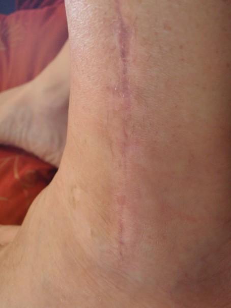 9 week scar check Tibia
