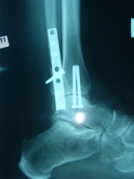 screws and plate trimalleolar fracture
